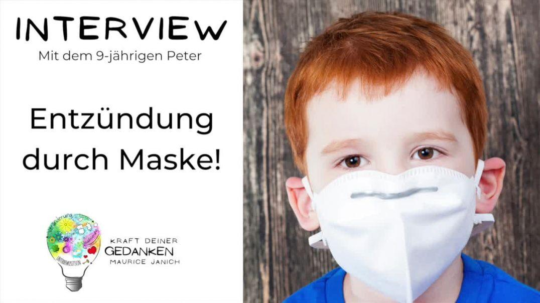 Arzt bestätigt: Entzündung durch Maske!
